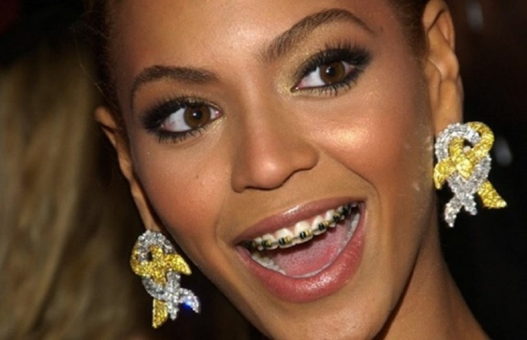 "Beyonce opted for braces to show young girls to ""embrace"" their flaws (Photo: mbraceables)"