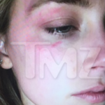 The actress submitted this shocking photo claiming the actor threw an iPhone at her earlier in the week. (Photo: Twitter, @TMZ)