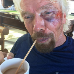 The entrepreneur said he was cycling in the dark when he hit a bump and flew over the handlebars. (Photo: Instagram, @richardbranson)