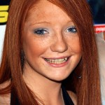 Nicola Roberts – Before. (Photo: Archive)