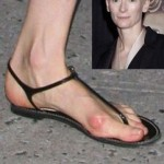 Tilda Swinton, and one heck of a stone bruise. (Photo: Twitter)