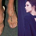 Victoria Beckham, or her feet's skeletal remains. (Photo: Twitter)