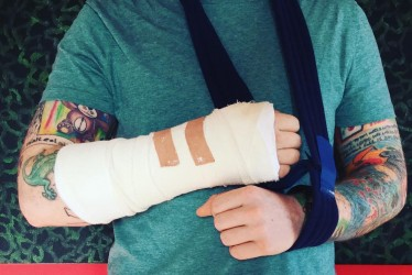15 Graphic Pictures Of Celebrities Who Have Injured Themselves