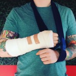 Ed Sheeran posted a picture on Instagram, revealing a broken wrist and elbow, consequences of a bike accident that has forced him to cancel 5 shows of his Divide world tour. (Photo: Instagram)