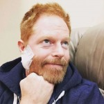Jesse Tyler Ferguson shared this smiling pic to his Instagram showing the large bandage he had to wear on his cheek after having an operation to remove a melanoma spot on his face. (Photo: Instagram)