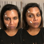 "Acne has no regard for you age! Just ask Mindy Kaling. ""That zits cream in you 30's life,"" she captioned a picture bravely showing off her pimples. (Photo: Instagram)"