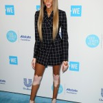 Winnie Harlow kept things simple at the red carpet of the 2018 WE Day California event wearing a bold check coat dress that put her beautiful endless legs in full display. (Photo: WENN)