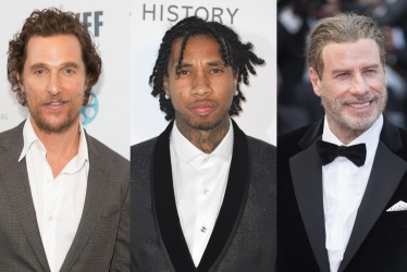 Tyga And 10 Other Celebrities Who Have Fought Baldness With Hair Transplants