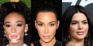 Just like Kim and her psoriasis, there are many celebrities with skin conditions. Yep—they're more like us mere mortals than you'd think! (Photo: WENN)