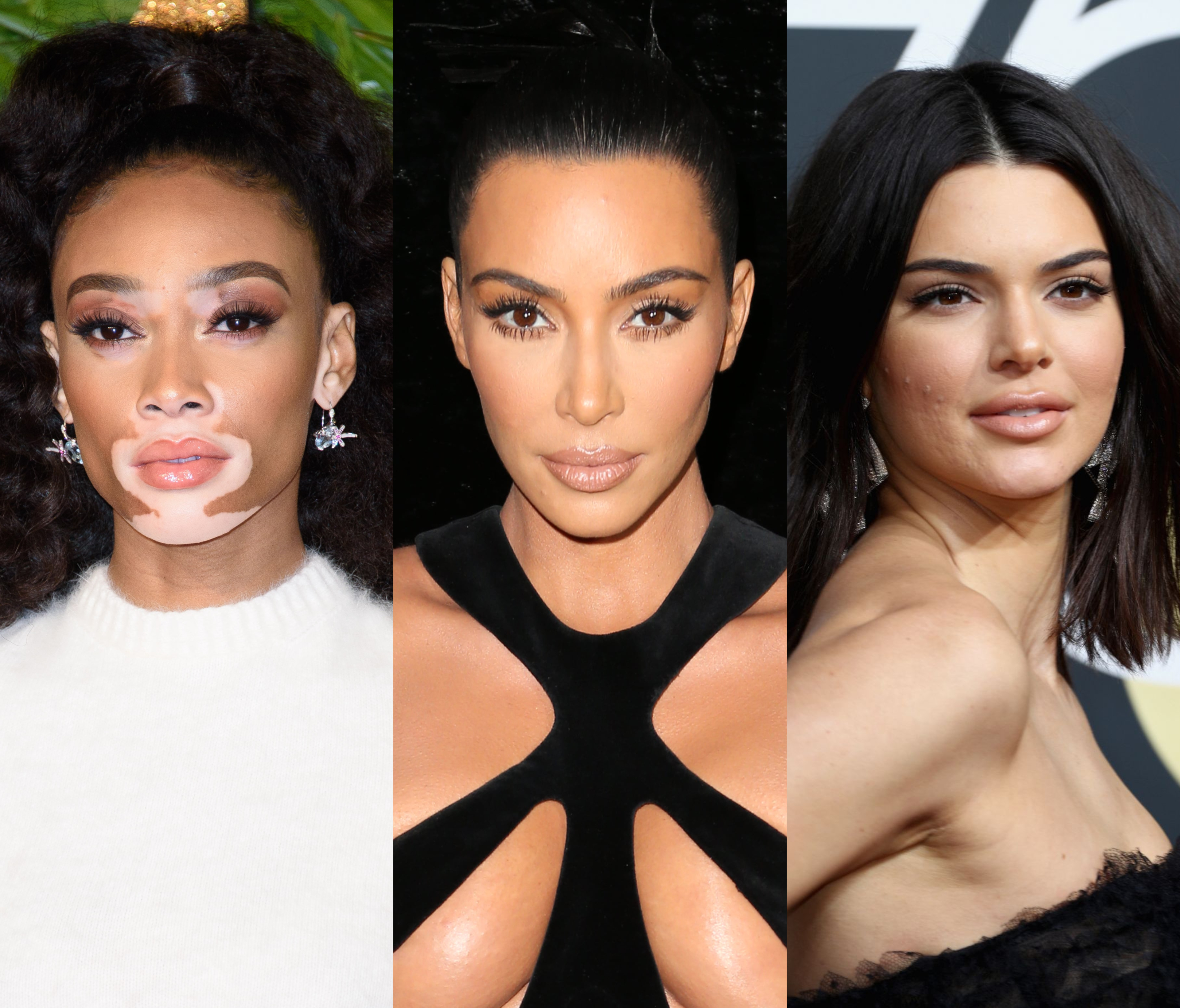 From Psoriasis To Skin Cancer 10 Celebrities With Skin Conditions Jetss